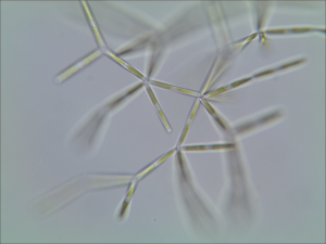 Yleisesti planktonista, Nitzschia frigida